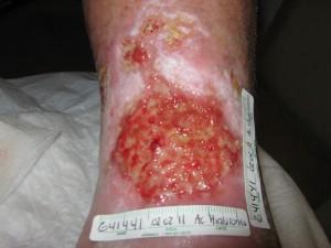 Úlcera-arterial