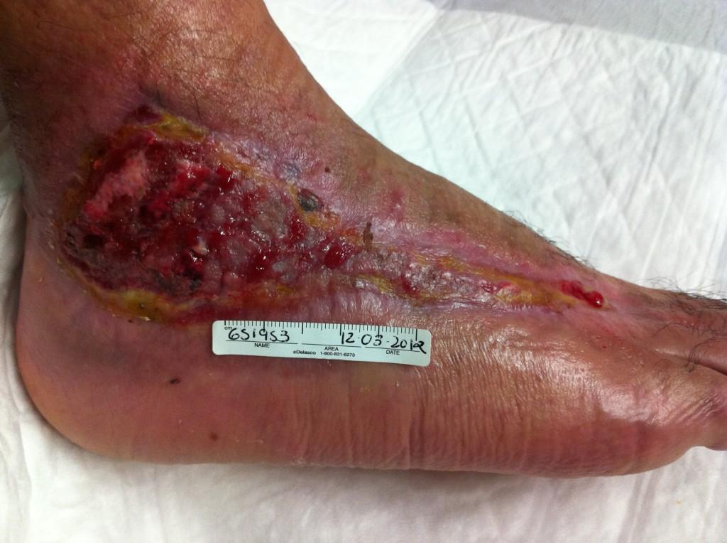 La úlcera tenía 10 cm de largo, el paciente llevaba 5 meses con ella.