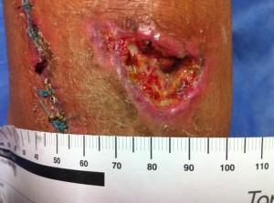 ulcera postraumatica1