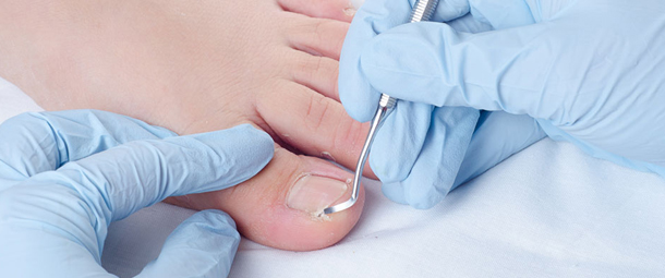 Información para paciente: Cuidado de los pies en los